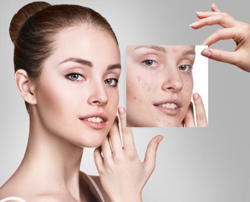 Alpha Peel De Luxe Kosmetikinstitut